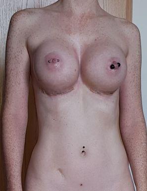 2 Wochen nach der Brustvergrößerung, Frontal-Ansicht