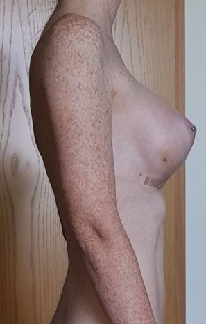 2_Wochen_nach_der_Brustvergroesserung_Seitenansicht
