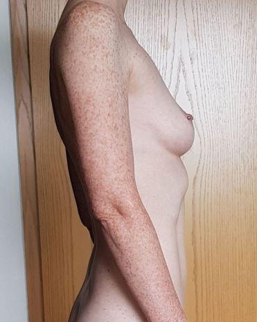Foto_vor_der_Brustvergroesserung_seitlich