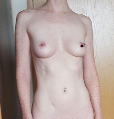 Foto_vor_der_Brustvergroesserung_vorn