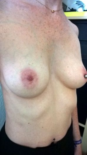Foto_vor_der_Brustvergroesserung_vorn_schraeges_Profil_nah