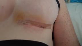 Wundheilung nach der Brustvergrößerung