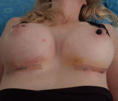 Heilungsverlauf nach der Brustvergrößerung 10.Tag