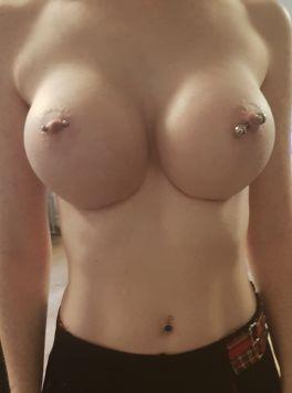 5 Monate nach der Brustvergrößerung mit 485ml high profile Implantaten