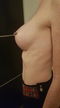 Die Trichterbrust fällt seit der Brustvergrößerung viel weniger auf
