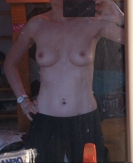 Sommer 2014 - 3 1/2 Jahre vor der Brustvergrößerung